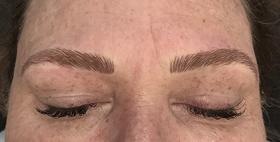 Immediately after microblading