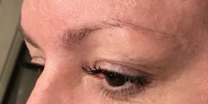 Over-Plucked Eyebrows Issues DFW