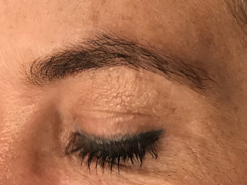 Over-Plucked Eyebrows Issues Plano