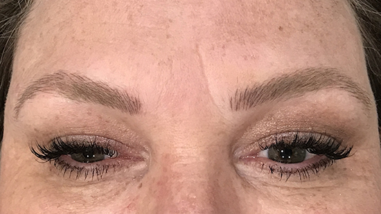 Thinning Eyebrows Treatment